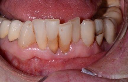Dental Implants Cost Edmonton, Alberta