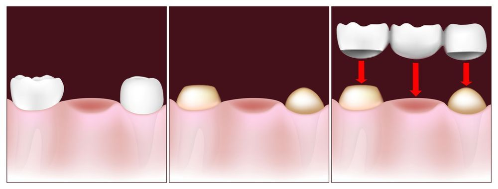 An illustrated example of a dental bridge.