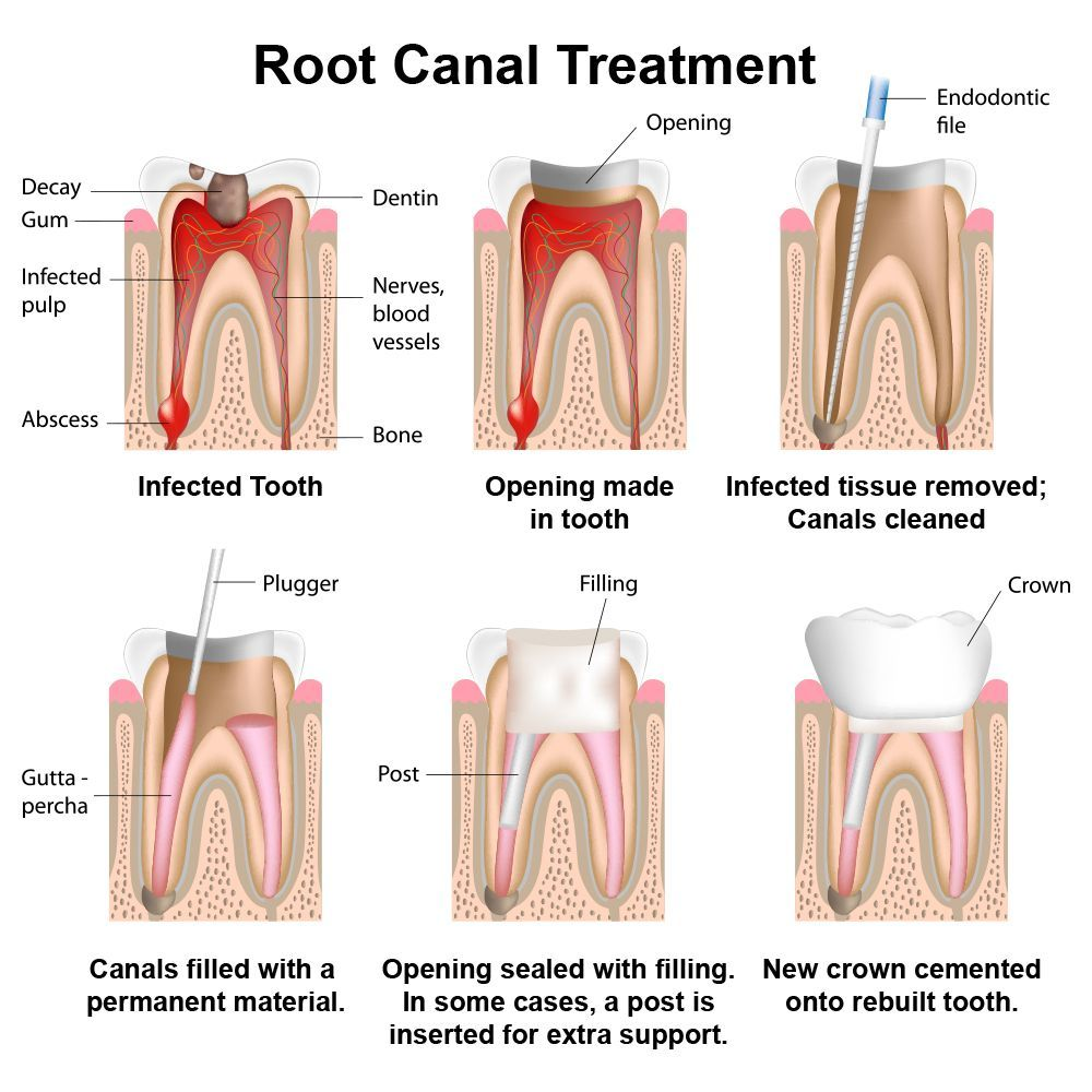 An illustrated example of the root canal treatment process