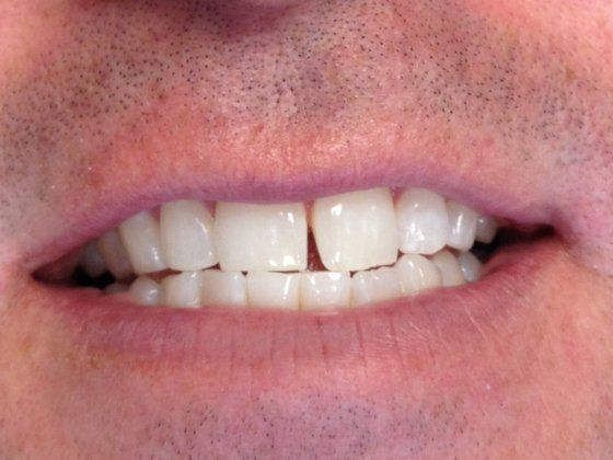 Before: patient's smile with a gap between the front teeth.