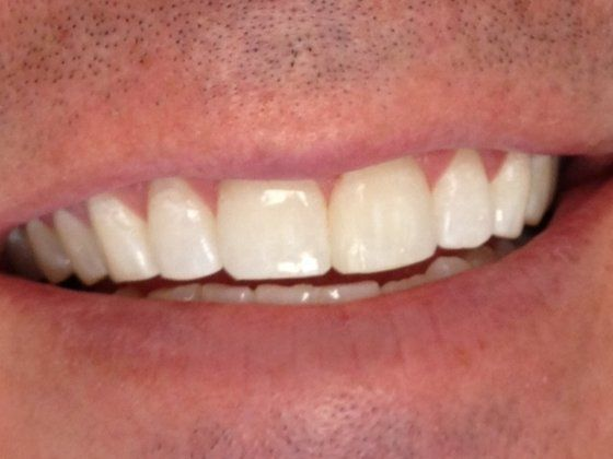 After: patient's smile without gap.