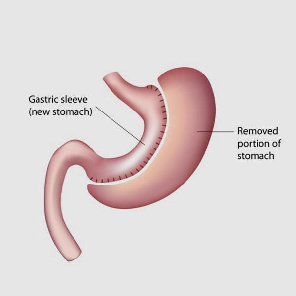 Gastric Sleeve Houston, TX - Northwest Endosurgical