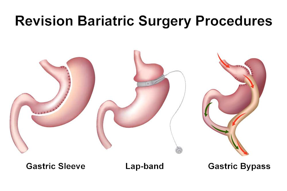 Revision Weight Loss Surgery Houston, TX - Northwest EndoSurgical