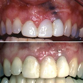 Before and after images of an amalgam tattoo removal patient