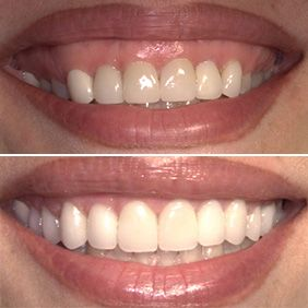 Before and after images of a crown lengthening patient