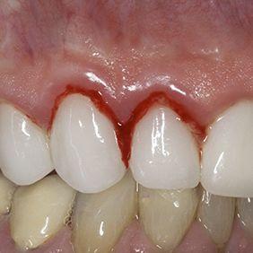 Close-up of gum tissue inflammation