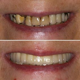 Before and after images of a patient who has undergone restorative enhancement