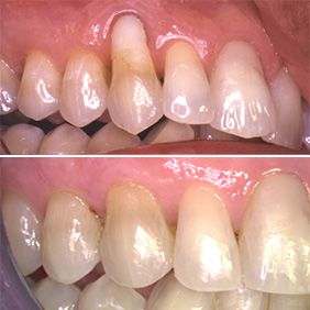 Before and after images of a soft tissue grafting patient