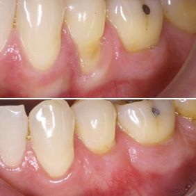 Before and after images of periodontal regeneration