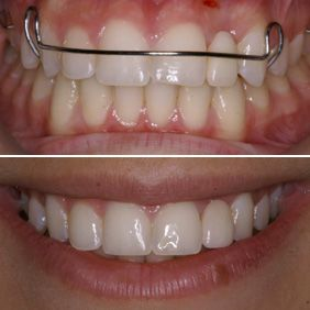 Before and after images of a cosmetic ridge augmentation patient
