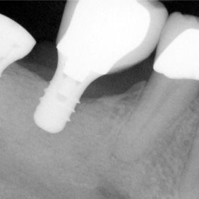 X-ray image of an implant-supported crown