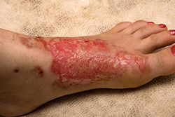 A foot that has suffered a burn injury