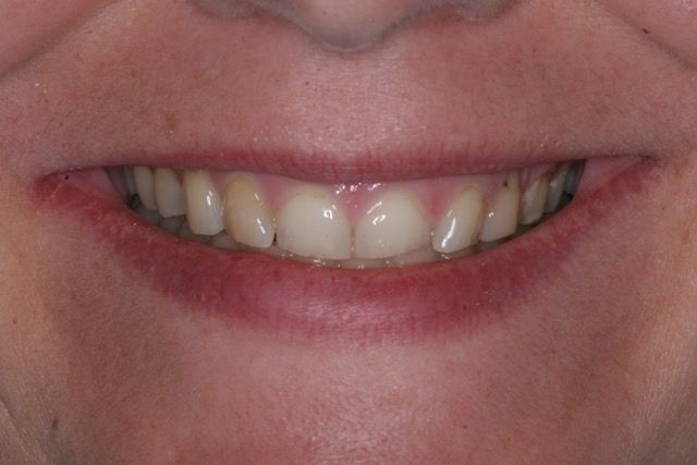 Veneers and crowns before