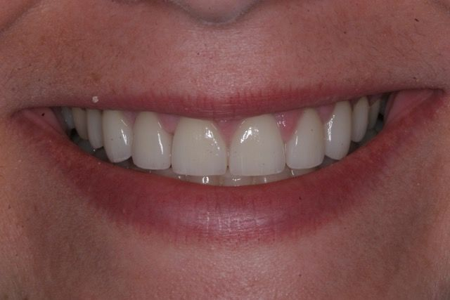 Veneers and crowns after