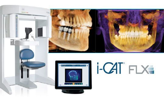 i-CAT® FLX Cone Beam Scanner