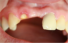 Dental Implant - Before