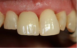 Dental Implant - After