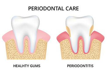 Illustration showing the effects of periodontitis