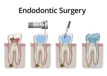 Illustration showing the stages of endodontic surgery