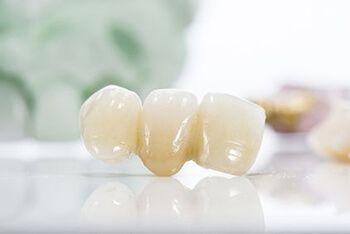 A dental bridge sitting on a table