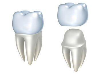 Digital illustration of a dental crown
