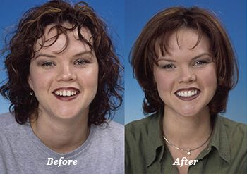 Before and after of a porcelain veneers patient