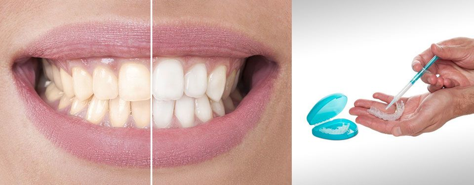 Before and after results of the Iveri teeth whitening system.