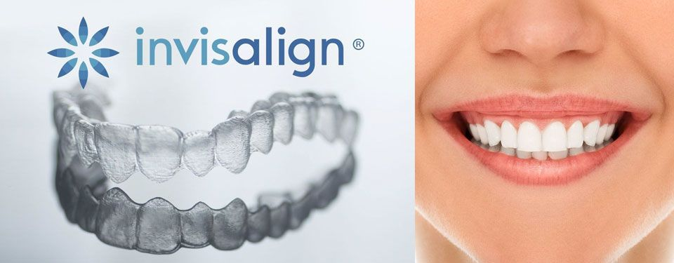 Invisalign® marketing image.