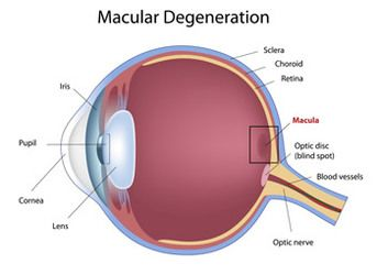 Eye with macular degeneration