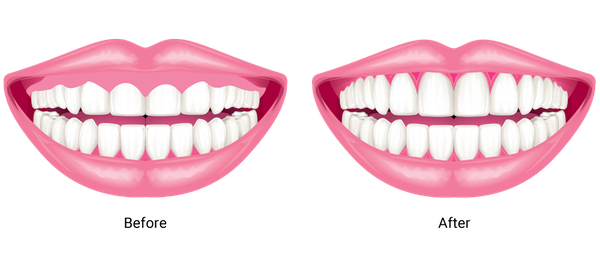 A before and after graphic of the gum conturing procedure