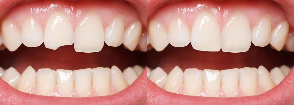 A before and after photo of successful dental bonding
