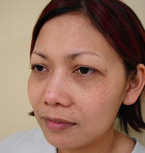 Before Blepharoplasty