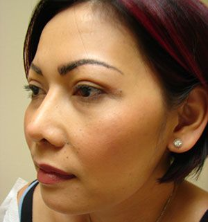 After - Blepharoplasty