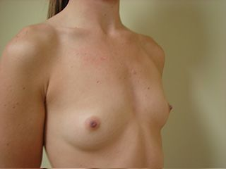 Breast Augmentation - Before