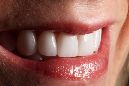 A single veneer being compared against a patient's smile