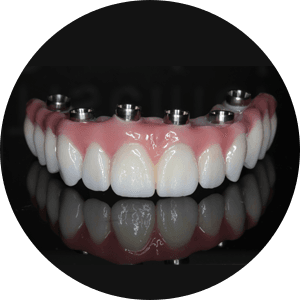 Full-arch implant supported denture