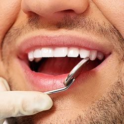 Dentist holding an exam mirror to a patient's mouth