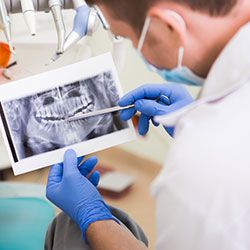 Dentist reviewing an x-ray
