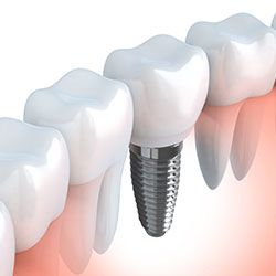 Digital illustration of dental implants for tooth replacement