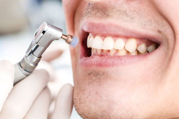 Close up of smiling mouth and brush at dentist office