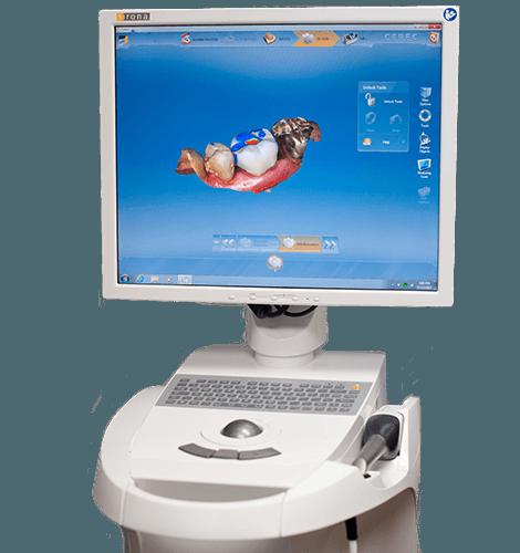 CEREC machine screen displaying teeth