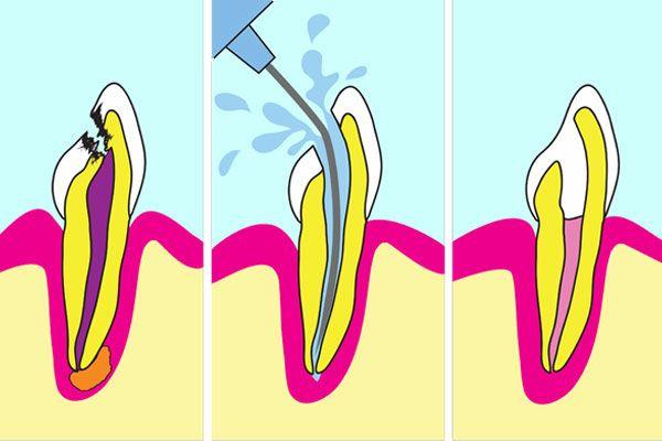 X-ray of molars