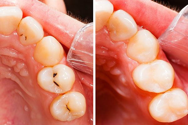 Before and after tooth-colored fillings