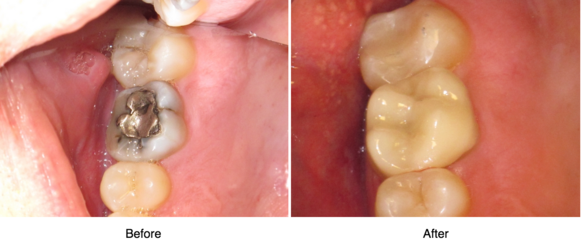 Before and after amalgam filling replaced with tooth-colored filling