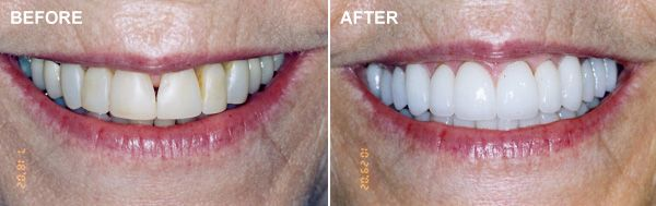 Before and after images of a smile makeover patient.