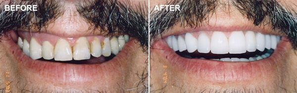 Before and after smile makeover shots of a man with a mustache