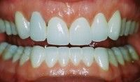 After porcelain veneers and crowns.