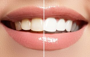 Before and after images of teeth whitening.