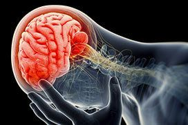 illustration of brain injury