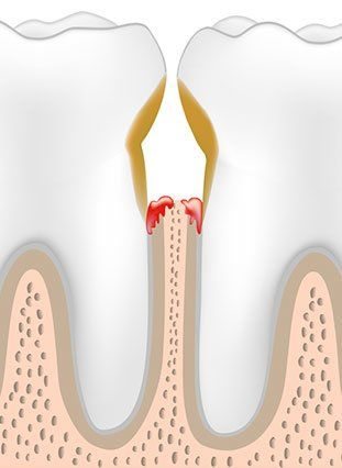 Cutaway graphic of an infected area between two teeth